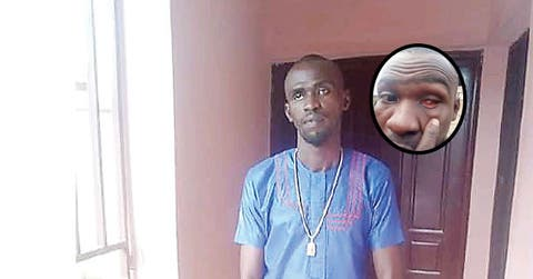 How SARS Took My Eye Framed Me For Armed Robbery –ex corps Member